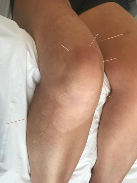 knee_accupuncture_jumpers_knee